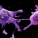 Image of lung cancer cells under a microscope.